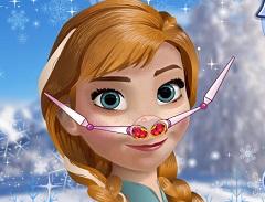Anna Nose Problem
