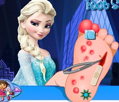 Elsa Foot Injury