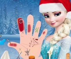 Elsa Hand Injury